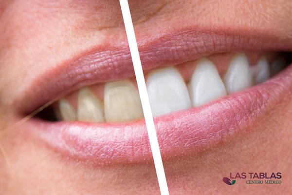 blanqueamiento dental en centro médico las tablas